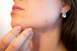 aceite esencial de cardamomo, acné